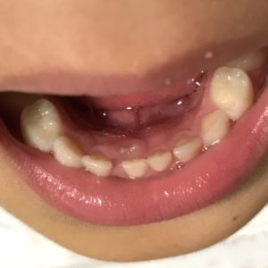 乳歯の後ろに永久歯
