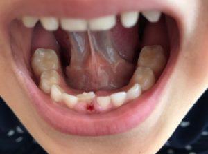 抜け た あと 乳歯