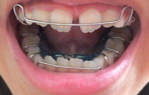 上下の顎に矯正装置