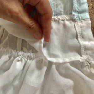 腹を縫う縫う場所
